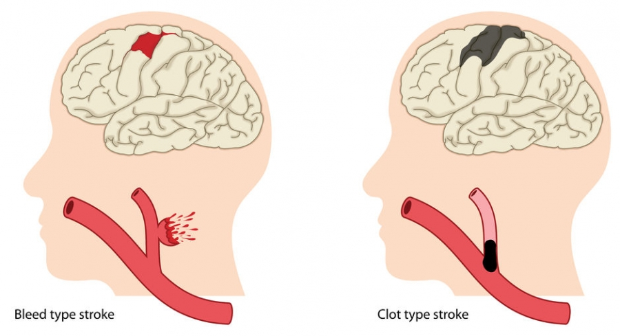 types of strokes