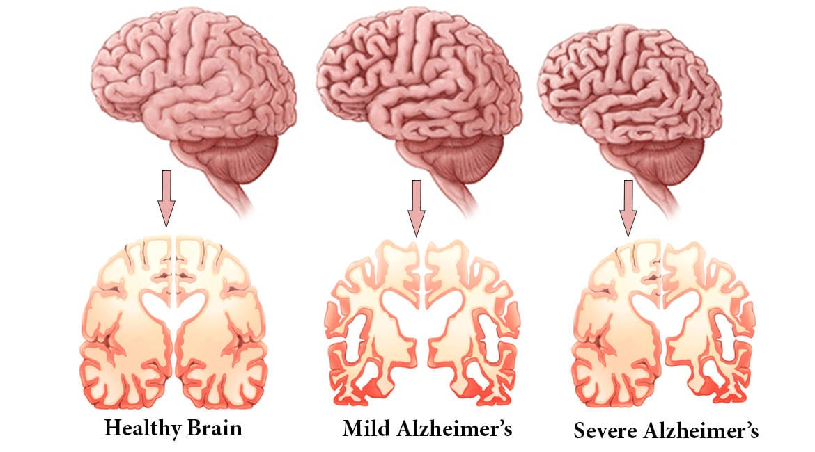 Alzheimers-Disease stages